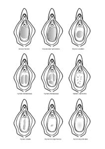 Dibujo con 9 tipos distintos de hímenes.