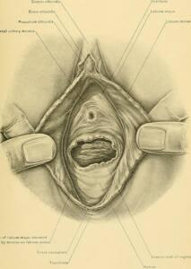 Imagen de la página 660 del libro Surgical anatomy. Se muestra los órganos externos femeninos incluido el himen.
