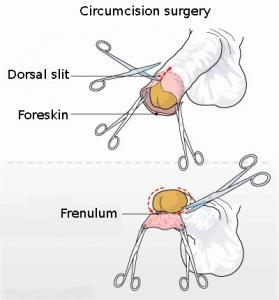 Ilustración del corte realizado durante una circuncisión.
